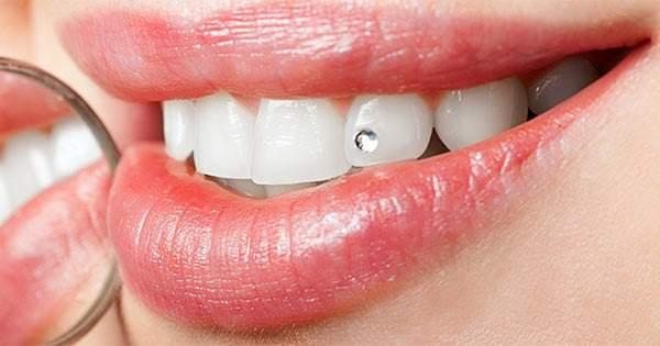 ¿Cuáles son los procedimientos de los tratamientos dentales estéticos_