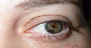 Descubre qué es y cómo tratar el melanoma ocular