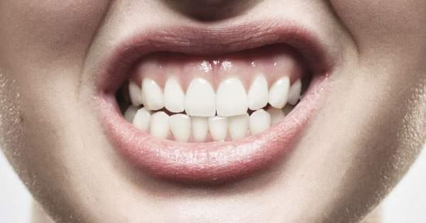 ¿El estrés afecta la salud bucal?