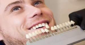 ¡Atención! Estos son los principales tratamientos de estética dental