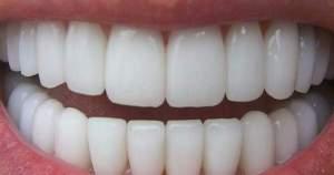 ¿Hay relación entre el consumo de marihuana y la enfermedad periodontal?