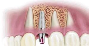 Implantes dentales la solución a tus problemas