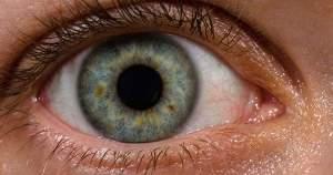 Lo que debes saber sobre el hipertelorismo