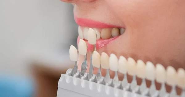 Los pros y contras de las carillas dentales, ¿valen la pena?