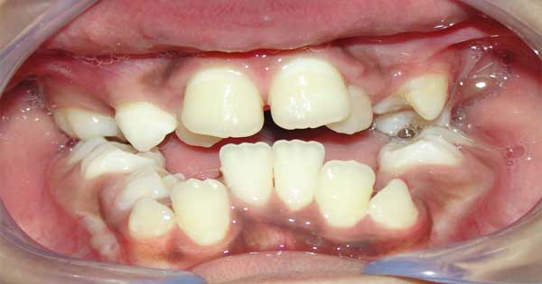 Maloclusion Dental en Niños
