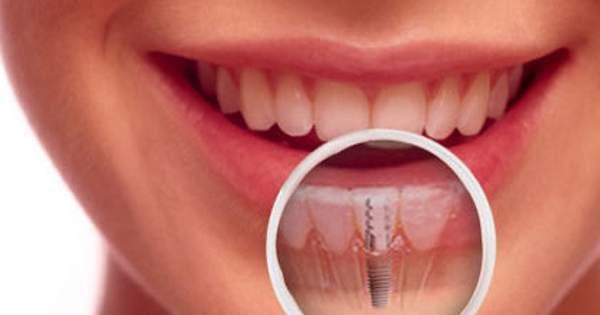 Opciones de tratamiento si has perdido un diente frontal