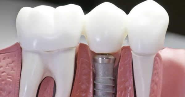 Osteoporosis e Implantes Dentales