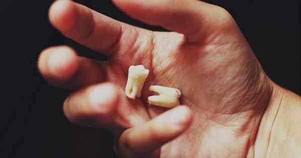 Perdiste uno o varios dientes Entérate de las consecuencias ocultas