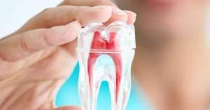 Preguntas frecuentes sobre la endodoncia