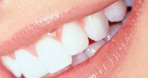 ¿Qué hacer para combatir las encías sangrantes?