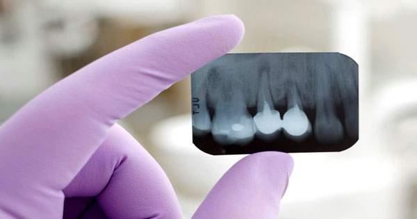 ¿Qué tan seguras son las radiografías odontológicas?