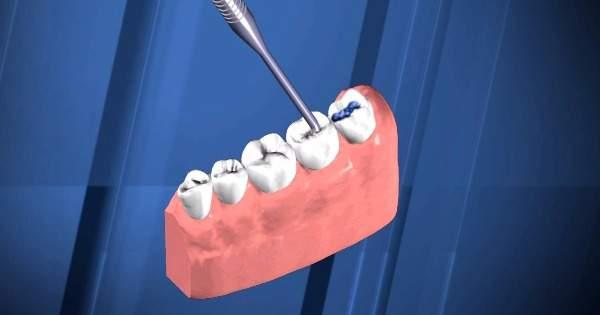 Selladores dentales, qué son y cómo funcionan