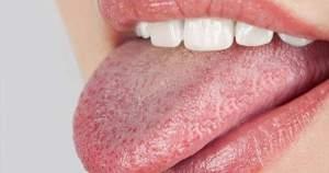 ¿Sensación de resequedad en la boca? Descarta la xerostomía