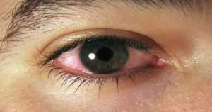 ¿Son realmente necesarios los antibióticos para tratar el ojo rojo?
