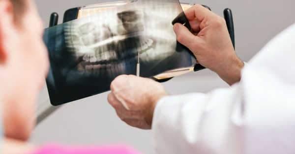 Terapia endodóntica y el éxito de las radiografías dentales