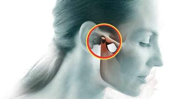 ¿Tu mandíbula truena Podría tratarse de la disfunción temporomandibular