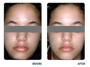 BLU-U Acne Treatment Before & After