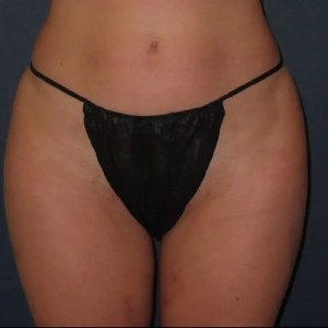 Outer thigh lipo after, Langhorne, PA