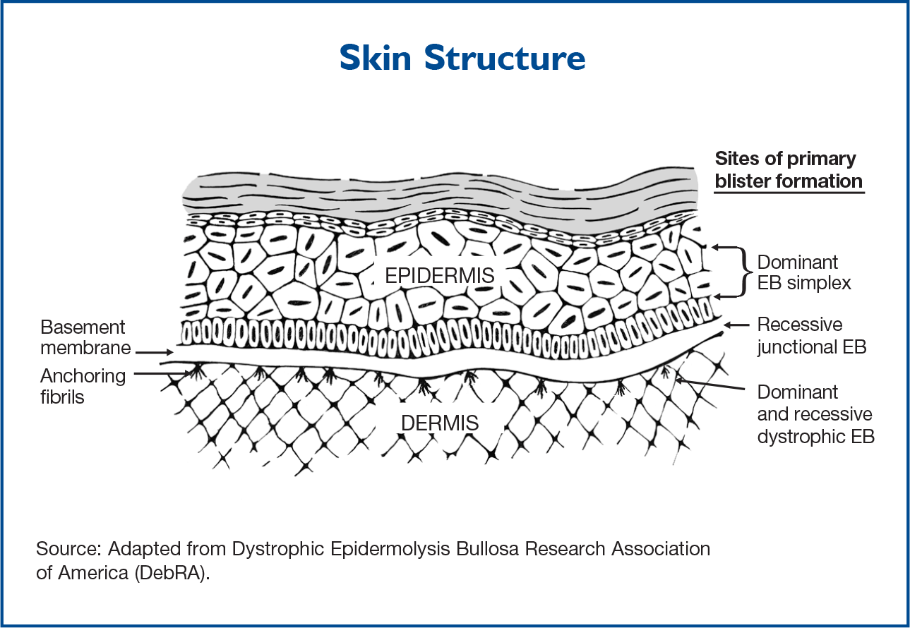 Centering The Focus Epidermolysis Bullosa