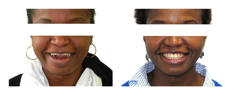 sourire_edente_avant_apres