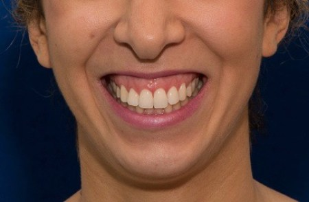 sourire_gingival_avant