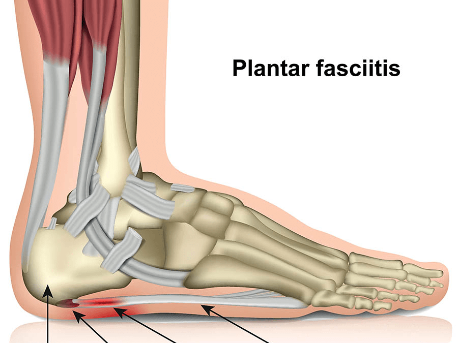 How do I fix plantar fasciitis