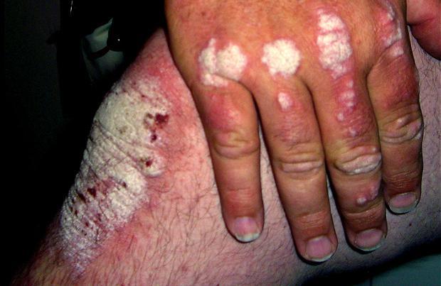 arthrite, arthrite rhumatoide, sporiasis, vieillesse