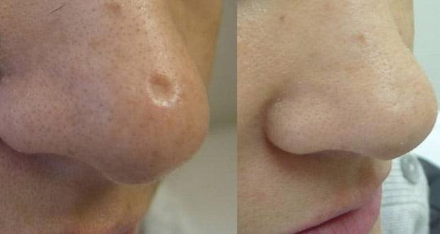 Le citron, le miel, le bicarbonate de soude, ou l'huile d'olive peuvent aider à atténuer ou effacer les cicatrices | SPM