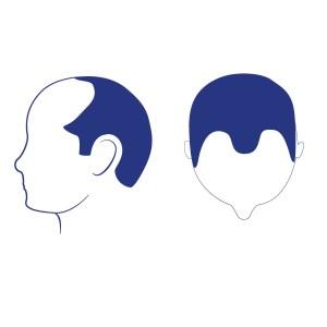 Phase 3 - Selon Norwood, cette calvitie représente le niveau le plus bas de la perte de cheveux gore à Norwood. À ce stade, dans la plupart des cuirs chevelu on observe un creusement plus profond des temples, qui sont peu ou pas couverts par les cheveux. Au cours de la phase 3 on observe au sommet du crâne la création d'une couronne, qui est un événement commun avec l'âge. La perte de cheveux provient principalement du sommet avec un dégarnissement limité de la ligne horizontale du front.