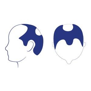 Phase 4 - Le dégarnissement du devant des tempes est plus sévère qu'au stade 3. Une perte de cheveux important se fait voir au niveau de la couronne. Une bande de cheveux peu denses qui s'étend à travers le haut du crâne sépare les deux zones dégarnies situées entre le devant des tempes et la couronne. Cette bande de cheveux unit les zones couvertes de cheveux des côtés de la tête.