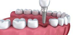 Los implantes dentales y el aumento de la calidad de vida