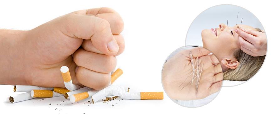 Acupuntura-dejar-fumar.jpg?fit=865%2C370&ssl=1
