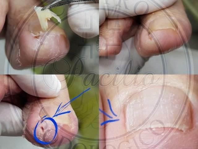 unghia incarnita napoli