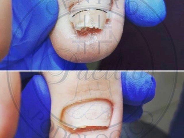 rieduazione curvatura unghia napoli