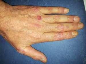 mano con psoriasi artrite unghie