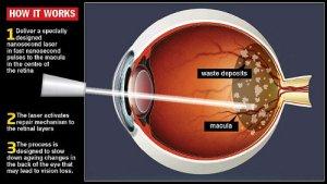 maculopatia cura laser