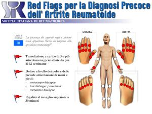 artrite reumatoide red flags