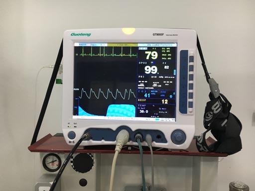 monitor-anestesia