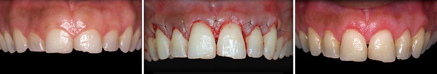 estetica-dental-modulo-2