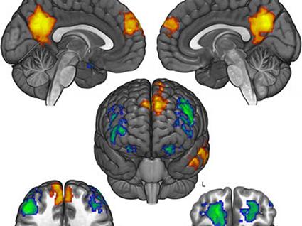 LIEN. Comment le cerveau refuse de changer d'opinion politique (et religieuse).