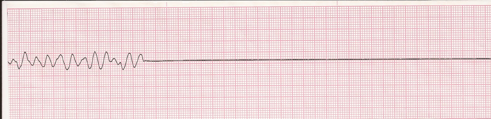 Image result for asystole