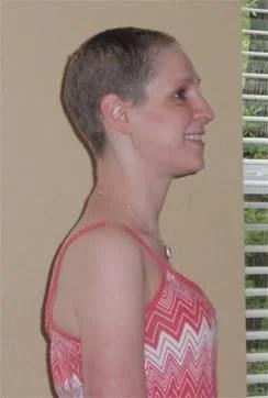 Breast Cancer Update April 2010
