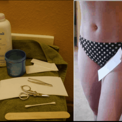 The Best Way to Do Wax Hair Removal at Home