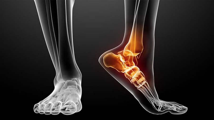 Heel pain symptoms, anatomy of the foot