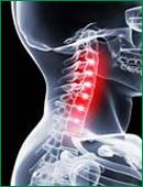 Symptoms of Cervical Spondylosis