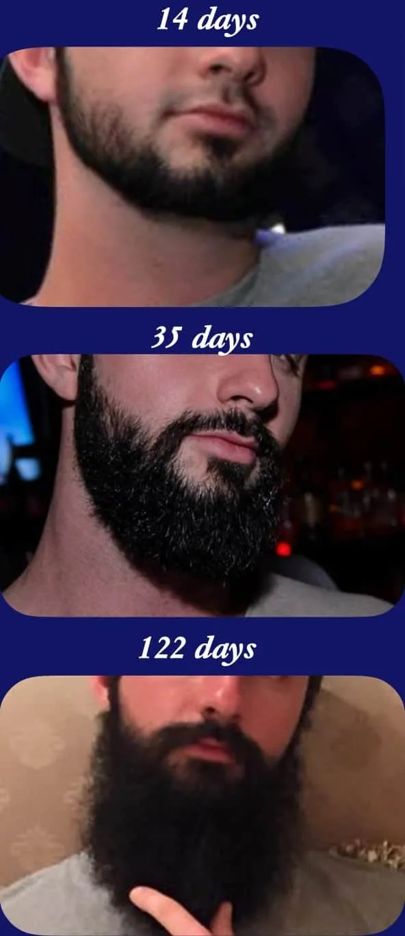 Results for beard growth