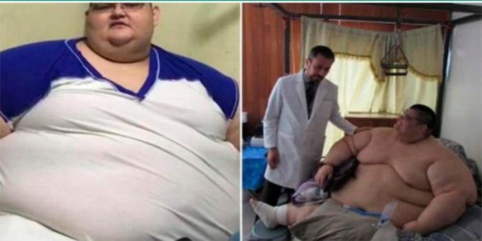 Juan-Pedro-obeso-México-Mundo-cirugía