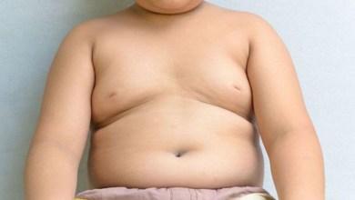 niños hígado graso Michoacán a