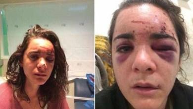 Photo of Estudiante Tenía 6 Meses En Madrid, Fue Golpeada Brutalmente Y Violada En Metro