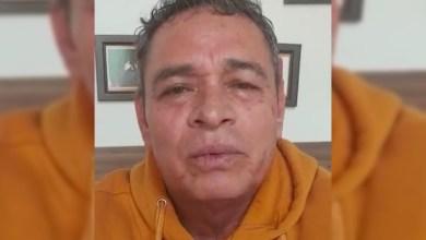 Photo of Diputado Del PT, Informa Que Salió Negativo En Prueba COVID-19